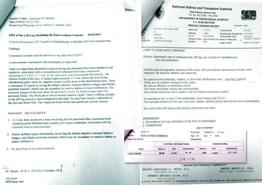 cancer of the bone result test by laminine